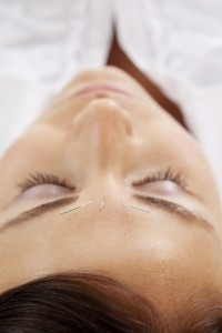 Facial acupuncture treatment on young attractive woman